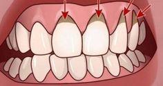 Gum Health, Oral Health, Health And Wellness, Health Tips, Health Care, Herbal Remedies, Health Remedies, Home Remedies, Natural Remedies