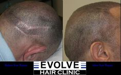 A great example of how Scalp Micro Pigmentation can camouflage a hair transplant scar. Camouflage, Hair Clinic, Microblading Eyebrows, Hair Restoration, Tattoo Removal, Hair Transplant, Hair Repair, Permanent Makeup