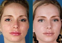 Pigmentation treatment using #ZOMedical #Skincare by Dr. Zein Obagi. Available at Romagosa Dermatology Group