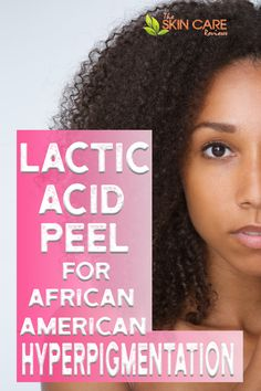 Is Lactic acid peel good for African American hyperpigmentation or dark spots? Check it out at theskincarereviews.com #africanamericanhyperpigmentation #hyperpigmentationblackskin #hyperpigmentationblackskinproducts Best Acne Products, Lush Products, Beauty Products, Lactic Acid Peel, American Skin, Black Skin Care, Skin Care Routine Steps, Natural Teeth Whitening, Alpha Hydroxy Acid