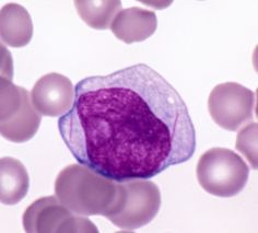 Some types of acute leukemia are composed of only blasts (no differentiating neutrophils, no monocytic precursors, just a sea of blasts). In those cases, look for Auer rods. A blast with an Auer rod can only be a myeloblast! It cannot be a lymphoblast, or a monoblast, or any other kind of blast. So if you see blasts with Auer rods, you know it is some type of acute myeloid leukemia. Remember, though, that the converse is not true: just because you don't see Auer rods, that does not mean that…