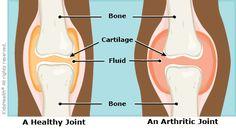 Juvenile Idiopathic Arthritis - KidsHealth For Parents : Akron ...