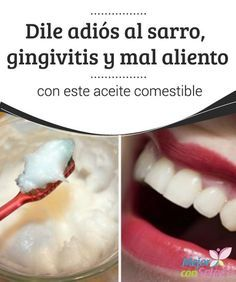 Having Bad Breath or Halitosis? Natural Home Remedies, Herbal Remedies, Health Remedies, Gum Disease Treatment, Benefits Of Coconut Oil, Bad Breath, Natural Medicine, Healthy Tips, Health And Beauty