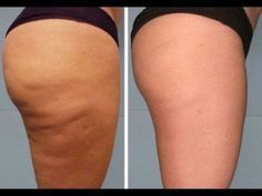 How to get rid of cellulite on legs? Home remedies for cellulite on legs. Treat cellulite on legs fast and naturally. Ways to cure cellulite on thighs.