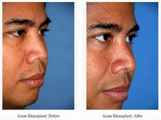 Below is a before and after Asian | Ethnic Rhinoplasty. The patient wanted a nose with a higher profile but wanted to maintain his ethnicity in the tip area.