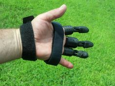 3D Printed Fingers Give Hope to Accident Victim http://3dprint.com/11037/3d-printed-fingers/