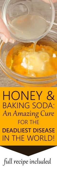 Honey and Baking Soda: An Amazing Cure For The Deadliest Disease in the World! Honey and Baking Soda: An Amazing Cure For The Deadliest Disease in the World! Holistic Remedies, Natural Health Remedies, Natural Cures, Herbal Remedies, Natural Honey, Natural Healing, Natural Medicine, Herbal Medicine, Arthritis Remedies