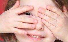 Occhio pigro? curalo con lo sport La ricerca pubblicata su Corrent Biology trae origine da un particolare fenomeno chiamato rivalità b oculisti occhio pigro