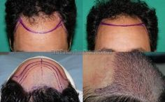 Creating Correct Hairline Height (Distance Between Eyebrows and Hairline) During Hair Transplant Surgery