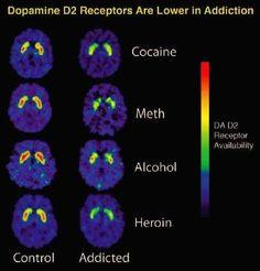 Image result for dr amen brain scan aging biological age