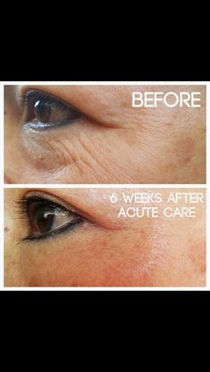 Rodan and Fields Acute Care....Fill a wrinkle overnight with a patch NOT a needle! Results last up to 3 months. These things are AMAZING!! Try risk free with our 60 day, money back guarantee! Message me to find out how to get 10% off and free shipping!!