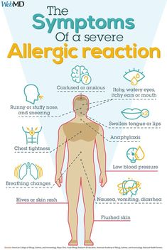 Symptoms of a Severe Allergic Reaction Symptoms Of Allergic Reaction, Allergic Reaction Remedies, Mast Cell Activation Syndrome, Allergic Rhinitis, Watery Eyes, Skin Rash, Skin Problems, Health Tips, Nursing