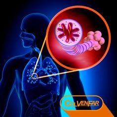 ¿Qué es el Asma? - Tips de Salud . COLVENFAR