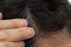 Home Dandruff Remedies ~ How to Moisturize a Dry and Itchy Scalp Moisturizing Body Scrub, Scalp Moisturizer, Extremely Dry Scalp, Itchy Flaky Scalp, Eczema Scalp, Dandruff Solutions, Dandruff Remedy, Hair Dandruff, Eczema Remedies