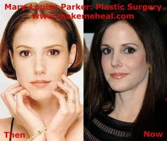 Mary Louise Parker Plastic Surgery Before and After Botox and Nose Job Mary Louise Parker, Botox Before And After, Celebrity Plastic Surgery, In Cosmetics, Celebs, Celebrities, Latest Pics, Facial, Hair Styles