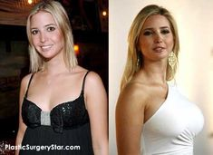 Ivanka Trump Plastic Surgery. NO DOUBT DADDY PAID FOR THE NEW BOOBIES SO HE COULD FANTASIZE ABOUT THEM.