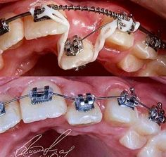 Braces. They fix everything