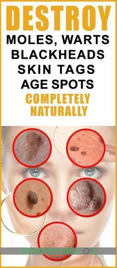 Destroy Your Moles, Warts, Blackheads, Skin Tags And Age Spots Completely Naturally – Healthy and Natural Cures Warts On Hands, Warts On Face, What Causes Warts, Natural Wart Remedies, Cold Remedies, Sleep Remedies, Holistic Remedies, Homeopathic Remedies, Health Remedies