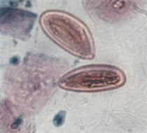 Strongyloides stercoralis (threadworm) eggs. Can be found in dueodenl drainage fluid in entero-test capsule. Can also be diagnosed through larvae in feces. Abdominal pain, diarrhea, and death in immunocompromised patients can occur. Thiabendazole, albendazole, and Ivermectin is used for treatment. Found in warm areas worldwide but mostly in tropics and subtropics.