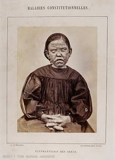 Leprosy, 1867 - This photograph taken by ophthalmologist A. de Montméja in 1867 was published in French dermatologist Alfred Hardy 1868 text Clinique photographique de l'hopital Saint-Louis. Leprosy a disease misunderstood and dreaded for centuries was found to be caused by a bacterium in 1871 by Norwegian physician Gerhard Hansen. It was the first disease to be proven to be caused by bacteria. The condition is slowly progressive condition with several forms.