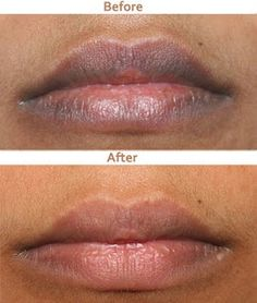 How To Get Rid Of Dark Lips Naturally?