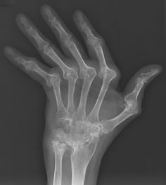 carpal ankylosis:  think RA or psoriatic arthritis.  in this case it is RA - look at ulnar deviation and erosion