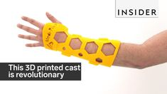 Mexican startup MediPrint invented the NovaCast. It's a custom fit, 3D-printed plastic cast. http://mediprint3d.com.mx/ https://www.facebook.com/MediPrintMex...