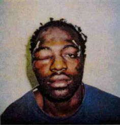 This is a picture of Rodney King after the beating by the 7 SEVEN LA police department officers. May he rest in peace. La Police Department, Rodney King, Police Beat, Night Terror, Today In History, Positive Images, We Are The World, We Remember, Criminal Justice