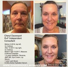 Rodan and Fields // skincare // men's skincare // men's fashion // women's fashion // Rodan and Fields Regimens // Rodan and Fields Skincare // Lash Boost // Rodan and Fields Products // Rodan and Fields Conultants // beauty // anti aging // wrinkle cream //skin care products // AMP MD Roller 2.0// Unblemish // Reverse // soothe // Redifine // Intensive Renewing Serum // social media // Melasma // sun damage //