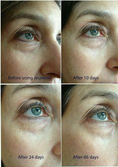 Resultados #antesydespúes con #luminesce #serumregenerador de la piel.