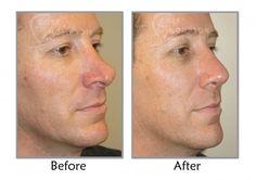 Deviated Septum Repair in Utah   Functional Nasal Surgery. Visit www.utahfacialplastics.com for more information.