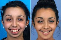 Woman 20 who underwent extreme facial surgery which left her on a soft food diet is now planning to be a beauty queen