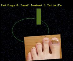 Fast fungus on toenail treatment in yantisville - Nail Fungus Remedy. You have nothing to lose! Visit Site Now