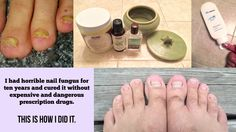 I had horrible nail fungus for ten years and cured it without expensive and dangerous prescription drugs. This is how I did it.