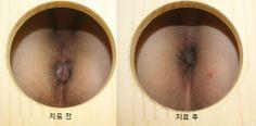 혈변을 주소로 한 치질환자의 치료 전후 사진