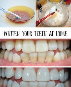 WHITEN YOUR TEETH AT HOME - Tips for a Beautiful Smile---The vinegar and oil treatment was disgusting! I'll just stick with coconut oil!