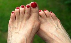 Os joanetes são depósitos de sal formados a partir de problemas como gripe, amidalite, gota, metabolismo lento, má nutrição, infecção reumática e utilização de sapatos desconfortáveis.