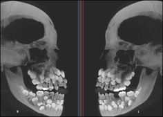 An X-ray of someone who has Multiple Hyperdontia. - Imgur