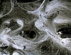 Rib bone scanning electron microscope - esker bone bone tissue - bone - osseous tissue Ossa, in part more cartilaginous. Microscope Pictures, Scanning Electron Microscope, Microscopic Photography, Macro Photography, Science Images, Rib Bones, Microscopic Images, Fotografia Macro, Macro And Micro