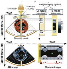 Echocardiography   Thoracic Key Ultrasound Physics, Heart Procedures, Arteries Anatomy, Cardiac Sonography, Medical Photos, Med School, Nicu, Education, Nursing