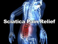 """""""Sciatica is a very painful condition that effects millions of people around the World. This app is aimed at educating the sufferer & aims to offer advice & help on pain relief.""""Gathering info to help my mom with her pain management from Sciatica Nerve. #health #HealthApp #PainManagement #SciaticNerve #seniors #ElderCare"""