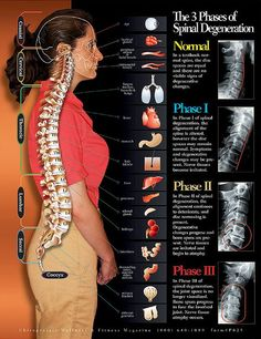 Spinal stenosis has become very common these days and it is a cause for chronic back pain in adults. Here are 11 things everyone should know about spinal stenosis. Cervical Spinal Stenosis, Spinal Stenosis Surgery, Douleur Nerf, Medical Student, Spinal Nerve, Spinal Cord, K Tape, Degenerative Disc Disease, Spine Health