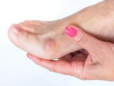 World Class Bunion Surgeon Dr. Moy Has Created Revolutionary Techniques In Bunion Surgery To Give Patients Virtually PAIN-FREE Procedure. How To Remove Bunions, Get Rid Of Bunions, Heal Spurs, Corn On Toe, Bunion Surgery, Big Toe, Lake Forest, Sport, Doilies
