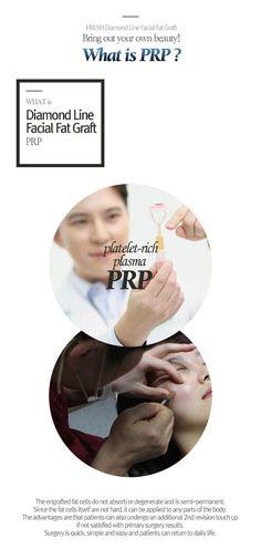 Facial Fat Graft | Korean Plastic Surgery | Fresh Plastic Surgery Barista Machine, Korean Plastic Surgery, Surgery Recovery, Facial, Fat, How To Apply, Fresh, Facial Treatment, Facial Care