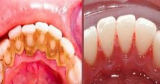 Video shows 3 best ways to remove teeth plaque or tartar at home without visiting a dentist for your dental cleaning. Remedies For Strong and White Teeth: ht. Health And Beauty Tips, Health Tips, Teeth Whitening, Home Remedies, Baking Soda, The Cure, Beauty Hacks, Health Fitness, Healthy