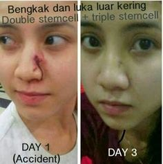 See this scar? Recover it using apple+grape stemcell..only MYR 135 per pack of sublingual powder.. do whatsapp  +60163463516 for more info.. also get 2 pack free if u bought 12 pack of stemcell
