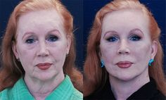 Effective Face Exercises To Tighten Face And Firm Up Neck Skin And To Get Rid Of Chubby Facial Fat