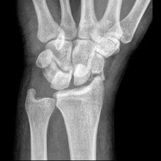 Trans-scaphoid perilunate dislocation: Fracture of the scaphoid with dorsal dislocation of the carpus relative to the lunate. Wrist Anatomy, Structure Of Bone, Rad Tech, Human Anatomy, Trauma, Bodies, Medicine, Health, Radiology