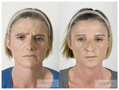 Learn easy face workouts to trim wrinkles, saggy skin, and a double chin. Latest facial exercise recommendations: Face toning workouts to decrease wrinkles and firm up loose face skin and muscles Sagging Face, Yoga For Toning, Botox Alternative, Natural Face Lift, Facial Yoga, Face Exercises, Skin Clinic, Face Skin, Gymnastics