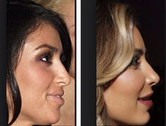 Kardashian before and after the nasal job, lip augmentation, skin laser, botox, ch Nose Fillers, Dermal Fillers, Botox Fillers, Kim Kardashian Before, Kardashians Before And After, Chin Filler, Botox Lips, Under Eye Fillers, Chin Implant
